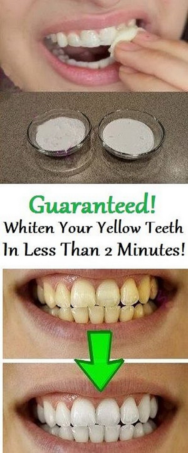 Whiten Your Teeth with Baking Soda and Lemon Juice Paste.
