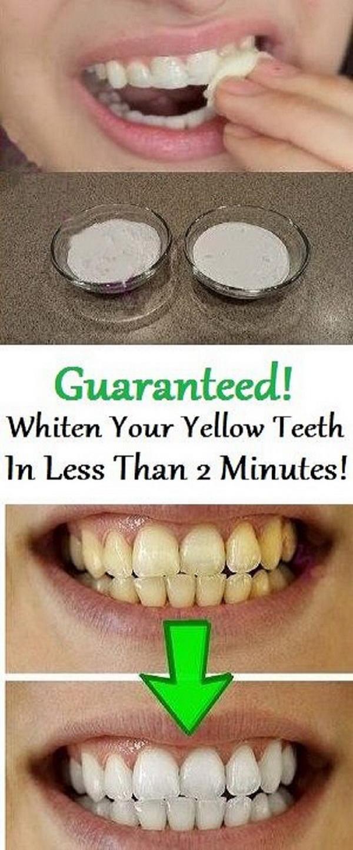 Whiten Your Teeth with Baking Soda and Lemon Juice Paste.
