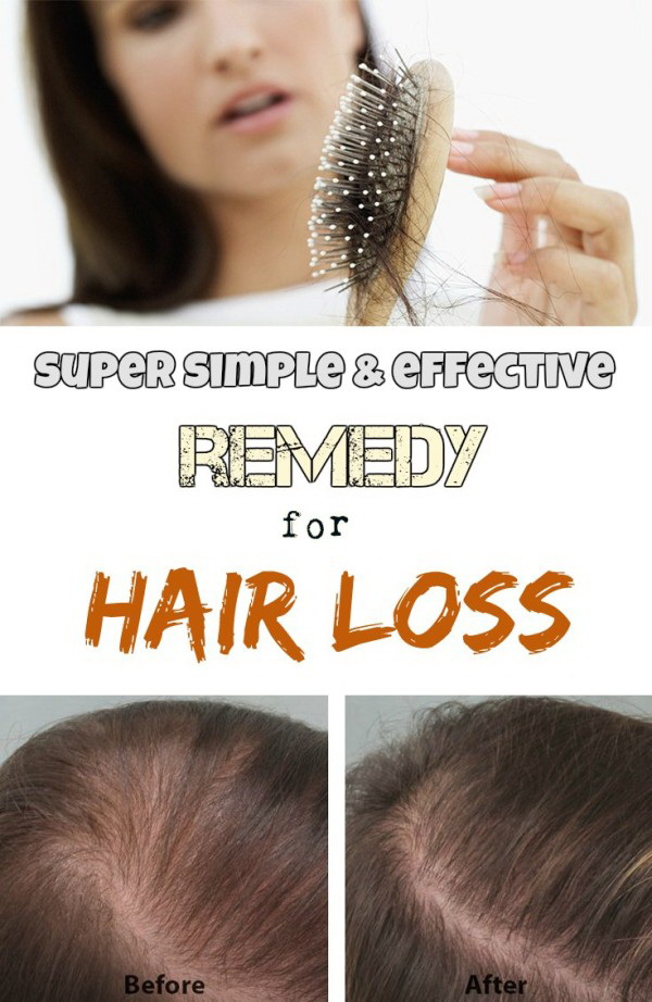 Super Simple And Effective Remedy For Hair Loss.
